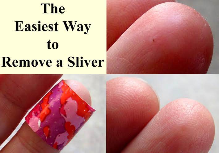 the easiest way to remove a sliver ~The Homestading Hippy