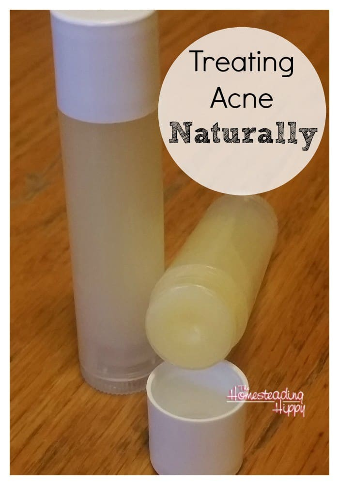 Got Acne? Using Essential Oils may help treat it and soothe irritated skin. Here's the recipe that has worked in my family ~The HomesteadingHippy #homesteadhippy #fromthefarm #essentialoils