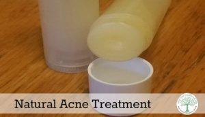 acne treatment post