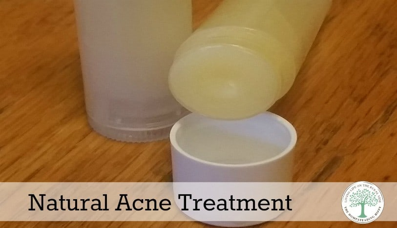 Got Acne? Using Essential Oils may help soothe irritated skin. Here's the recipe that has worked in my family ~The HomesteadingHippy #homesteadhippy #fromthefarm #essentialoils