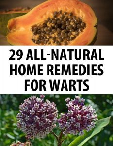warts remedies pin