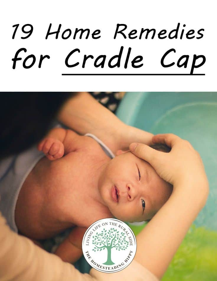 cradle cap remedies pin
